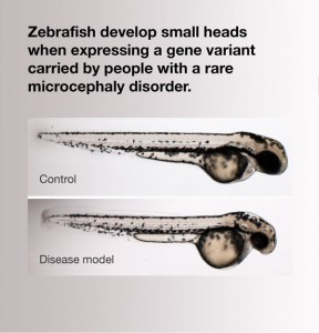 zebrafish microcephaly model