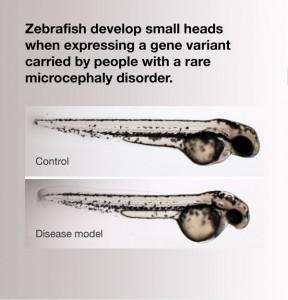 zebrafish microcephaly model
