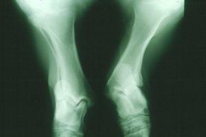 An X-ray image of an atavistic pony's legs. Photo credit: Göran Dalin.