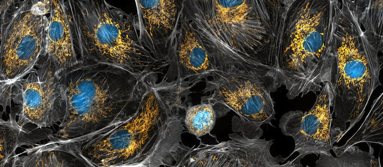 In this microscopic image of cow cells, the nucleus is stained blue and the hundreds of mitochondria in each cell are stained golden yellow. Photo by Torsten Wittmann via NIH Image Gallery on Flickr.