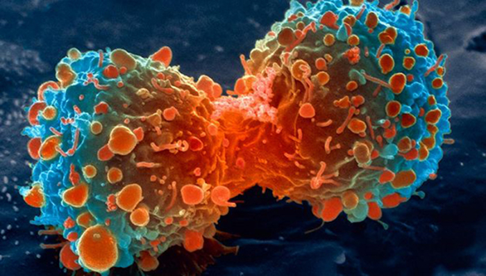 Image: lung cell division by the National Institutes of Health.